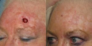 Skin-Cancer-And-Reconstructive-Surgery-Center-Skin-Cancer-Specialists-Reconstructive-Before-And-After-Forehead-Cancer (13)