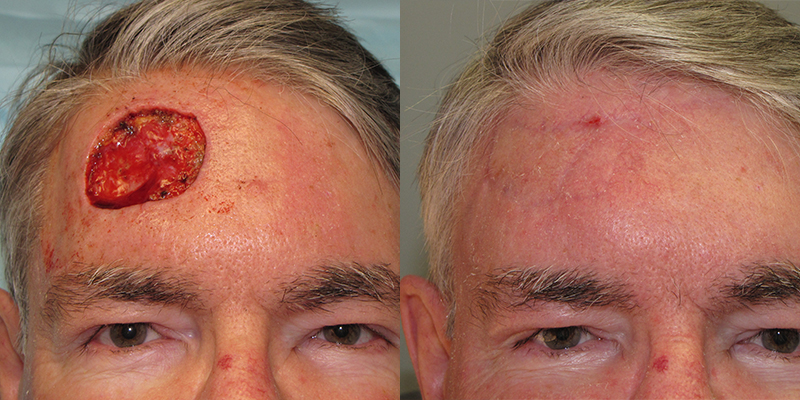 Forehead Reconstruction Skin Cancer And Reconstructive Surgery Center