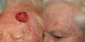 Skin-Cancer-And-Reconstructive-Surgery-Center-Skin-Cancer-Specialists-Reconstructive-Before-And-After-Forehead-Cancer (16)