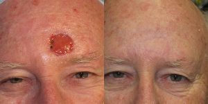 Skin-Cancer-And-Reconstructive-Surgery-Center-Skin-Cancer-Specialists-Reconstructive-Before-And-After-Forehead-Cancer (17)