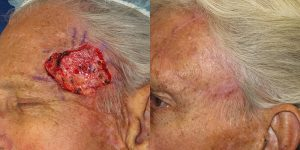 Skin-Cancer-And-Reconstructive-Surgery-Center-Skin-Cancer-Specialists-Reconstructive-Before-And-After-Forehead-Cancer (18)