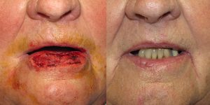Skin-Cancer-And-Reconstructive-Surgery-Center-Skin-Cancer-Specialists-Reconstructive-Before-And-After-Forehead-Cancer (20)