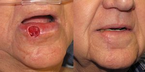 Skin-Cancer-And-Reconstructive-Surgery-Center-Skin-Cancer-Specialists-Reconstructive-Before-And-After-Forehead-Cancer (21)