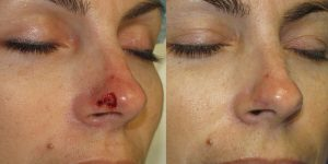 Skin-Cancer-And-Reconstructive-Surgery-Center-Skin-Cancer-Specialists-Reconstructive-Before-And-After-Nose-Cancer (21)