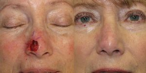 Skin-Cancer-And-Reconstructive-Surgery-Center-Skin-Cancer-Specialists-Reconstructive-Before-And-After-Nose-Cancer (22)