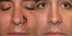 Skin-Cancer-And-Reconstructive-Surgery-Center-Skin-Cancer-Specialists-Reconstructive-Before-And-After-Nose-Cancer (23)