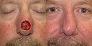Skin-Cancer-And-Reconstructive-Surgery-Center-Skin-Cancer-Specialists-Reconstructive-Before-And-After-Nose-Cancer (24)