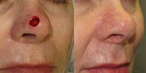 Skin-Cancer-And-Reconstructive-Surgery-Center-Skin-Cancer-Specialists-Reconstructive-Before-And-After-Nose-Cancer (25)