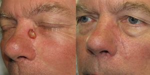 Skin-Cancer-And-Reconstructive-Surgery-Center-Skin-Cancer-Specialists-Reconstructive-Before-And-After-Nose-Cancer (26)