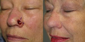 Skin-Cancer-And-Reconstructive-Surgery-Center-Skin-Cancer-Specialists-Reconstructive-Before-And-After-Nose-Cancer (27)