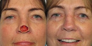 Skin-Cancer-And-Reconstructive-Surgery-Center-Skin-Cancer-Specialists-Reconstructive-Before-And-After-Nose-Cancer (28)
