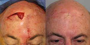 Skin-Cancer-And-Reconstructive-Surgery-Center-Skin-Cancer-Specialists-Reconstructive-Before-And-After-Scalp-Cancer (26)