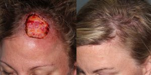 Skin-Cancer-And-Reconstructive-Surgery-Center-Skin-Cancer-Specialists-Reconstructive-Before-And-After-Scalp-Cancer (27)