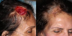 Skin-Cancer-And-Reconstructive-Surgery-Center-Skin-Cancer-Specialists-Reconstructive-Before-And-After-Scalp-Cancer (28)