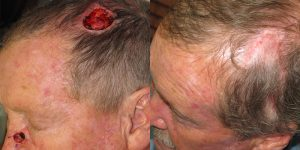 Skin-Cancer-And-Reconstructive-Surgery-Center-Skin-Cancer-Specialists-Reconstructive-Before-And-After-Scalp-Cancer (29)