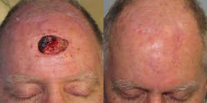 Skin-Cancer-And-Reconstructive-Surgery-Center-Skin-Cancer-Specialists-Reconstructive-Before-And-After-Scalp-Cancer (30)