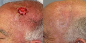 Skin-Cancer-And-Reconstructive-Surgery-Center-Skin-Cancer-Specialists-Reconstructive-Before-And-After-Scalp-Cancer (31)