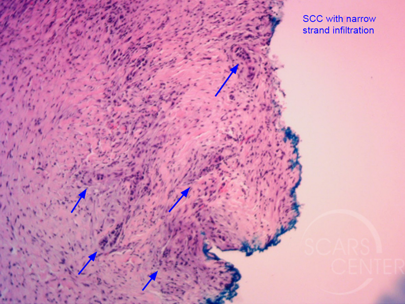 Skin-Cancer-And-Reconstructive-Surgery-Foundation-Forehead-Histology-showing-squamous-cell-carcinoma-with-narrow-strand-infiltration-Path1