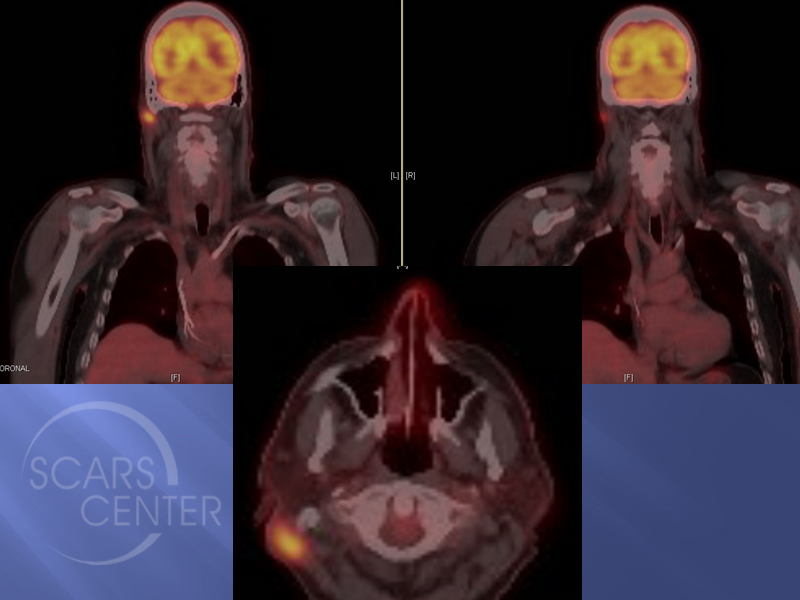 Skin-Cancer-And-Reconstructive-Surgery-Foundation-Scalp-SCC-Metastasis-to-neck-CT-PET-scan