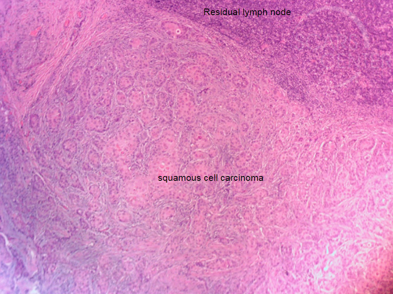 Skin-Cancer-And-Reconstructive-Surgery-Foundation-Scalp-SCC-Metastasis-to-neck-Path-Histology-squamous-cell-carcinoma-within-lymph-node