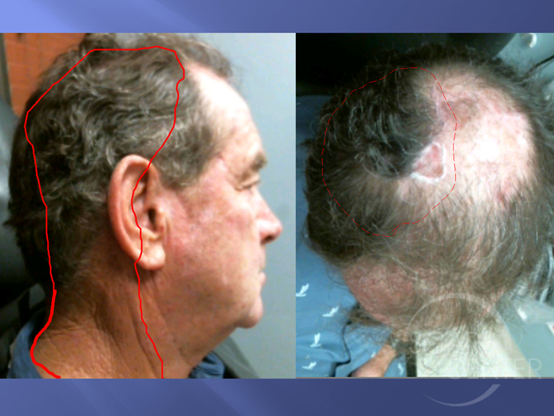 Skin-Cancer-And-Reconstructive-Surgery-Foundation-Scalp-SCC-Metastasis-to-neck-Radiation-field-planning
