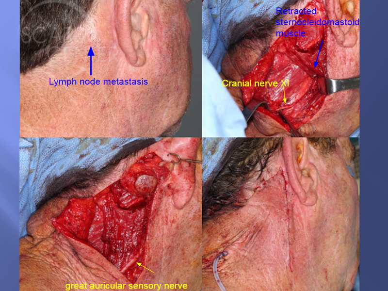Skin-Cancer-And-Reconstructive-Surgery-Foundation-Scalp-SCC-Metastasis-to-neck-surgical-anatomy