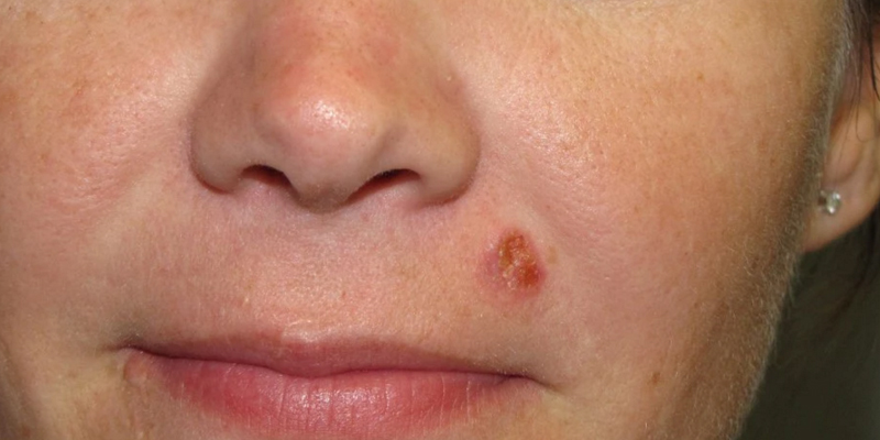 Skin-Cancer-Specialists-Squamous-Cell-Carcinoma-Lip-Skin-Cancer-and-Reconstructive-Surgery-Center-Orange-County