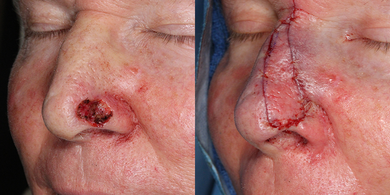 Skin-Cancer-Specialists-Structural-Graft-Skin-Cancer-And-Reconstructive-Surgery-Center-Newport-Beach-Orange-County