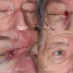 Reconstructive Cases - Medial Canthal Nose / Eyelid Reconstruction