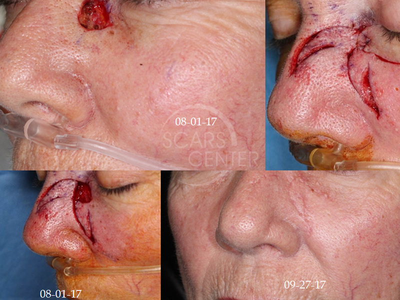 Skin-Cancer-And-Reconstructive-Surgery-Foundation-Patient-5-reconstructive-cases-medial-canthis-eyelid-reconstruction