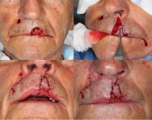 BCC-Left-Upper-Lip-Orange-County-Skin-Cancer-Mohs-Reconstruction