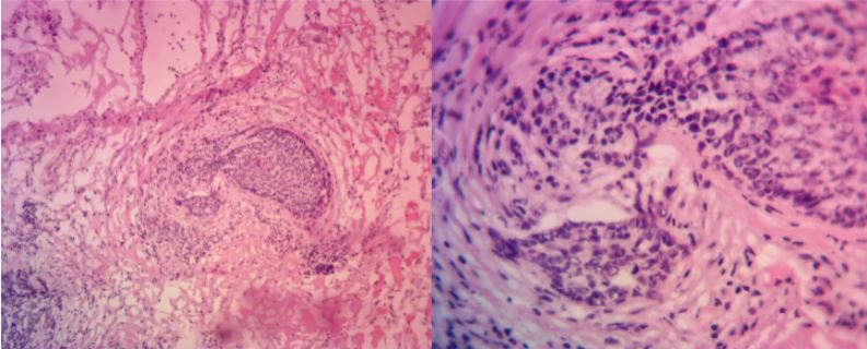 BCC-Left-Upper-Lip-Orange-County-Skin-Cancer-Mohs-Reconstruction-Pathology