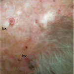 Multiple Skin Cancers in an Organ Transplant Recipient