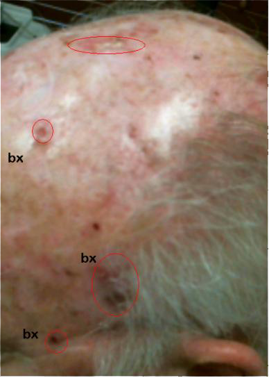 Treatment for Multiple Skin Cancer Patients