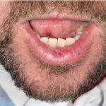 Dysplasia of Lower Lip