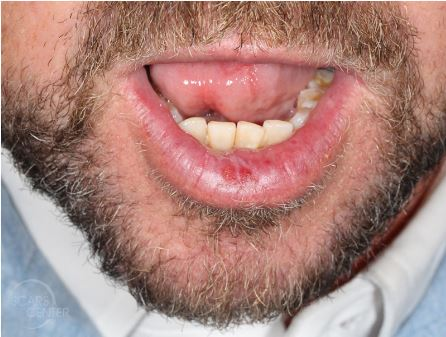 dysplasia of lower lip skin cancer and reconstructive surgery center