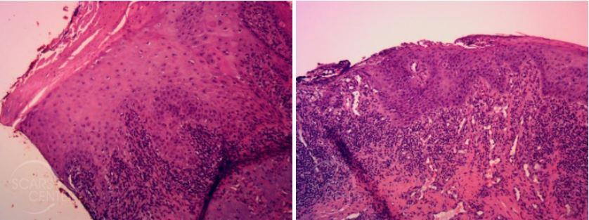 Dysplasia-lower-lip-actinic-cheilitis