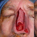 Recurrent SCC of Nasal Tip