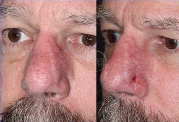 Recurrent-SCC-of-Nasal-Tip-Orange-County-Skin-Cancer 2