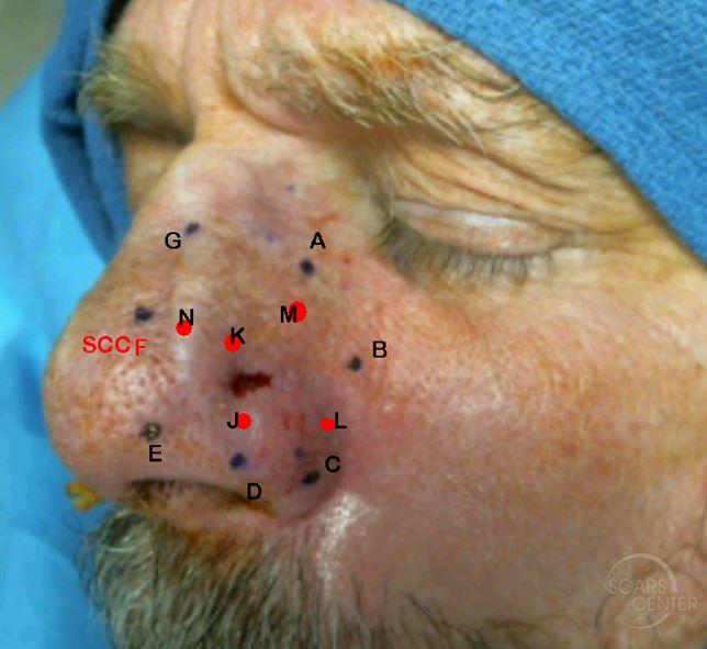 Recurrent-SCC-of-Nasal-Tip-Orange-County-Skin-Cancer 3