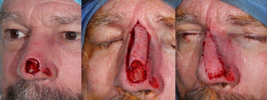 Recurrent-SCC-of-Nasal-Tip-Orange-County-Skin-Cancer