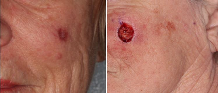 adnexal-squamous-cell-carcinoma-parotid-Mohs-and-reconstruction