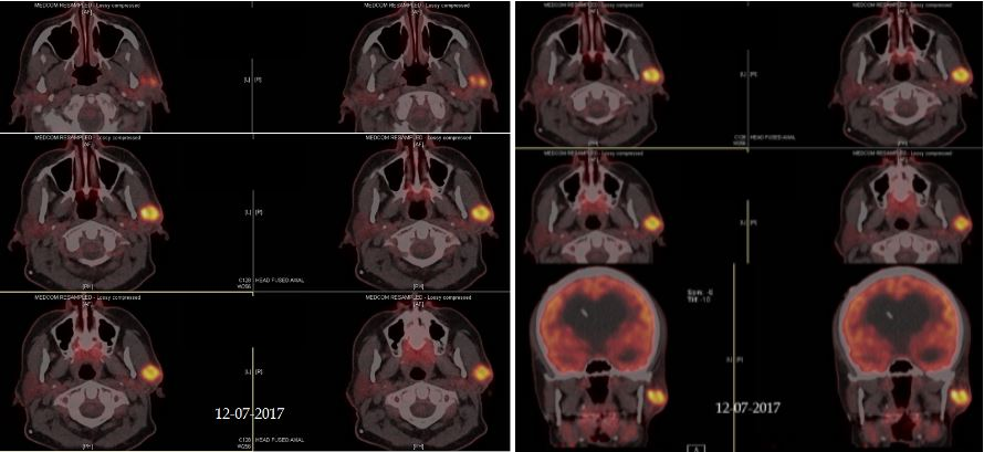 adnexal-squamous-cell-carcinoma-parotid-Mohs-and-reconstruction3