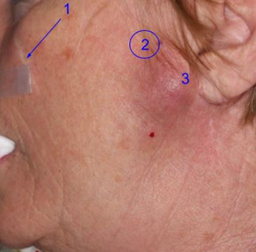 adnexal-squamous-cell-carcinoma-parotid-Mohs-and-reconstruction4