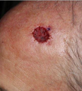 Dysplastic-nevus-melanocytic-tumor-porcine-xenograft-island-flap
