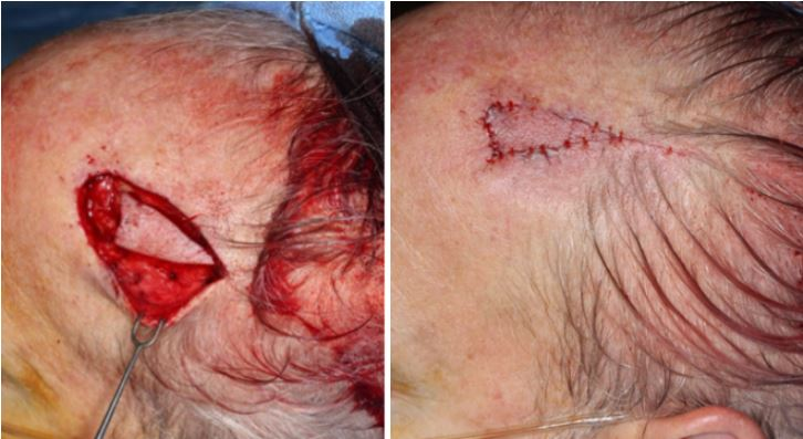 Dysplastic-nevus-melanocytic-tumor-porcine-xenograft-island-flap2