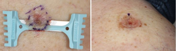 Basal-cell-carcinoma-shave-excision-skin-cancer-orange-county-shave-excision-dermablade