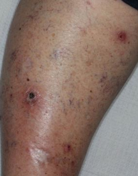 Basal-cell-carcinoma-shave-excision-skin-cancer-orange-county