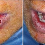 Lower Lip Mucosal Defect
