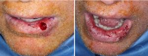Lower-lip-mucosal-defect-myomucosal-island-flap-partial-island-flap-orange-county-skin-cancer